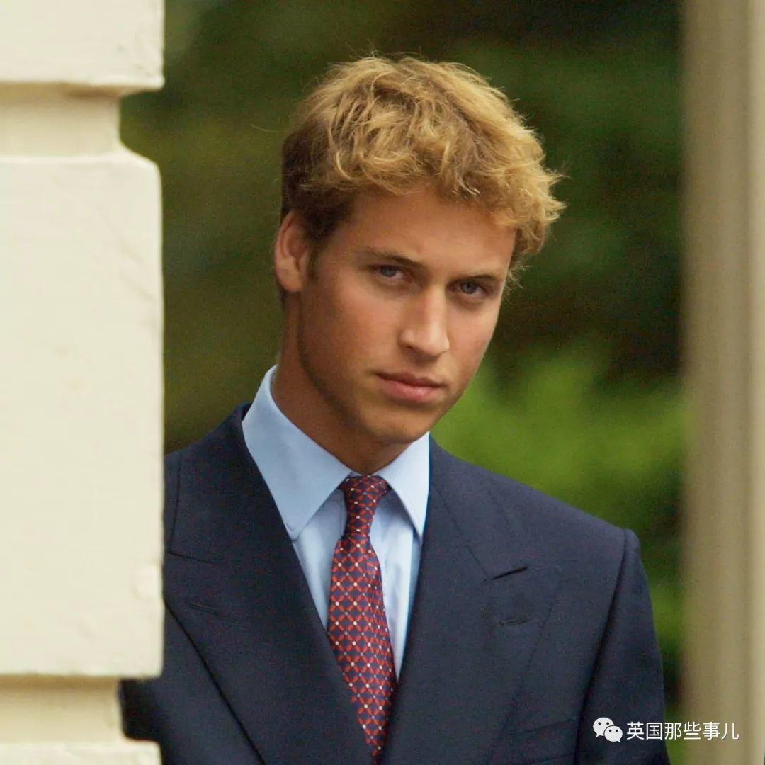 短短1年,哈里王子秃的面积扩大了一倍...英国人民又忍不住了...
