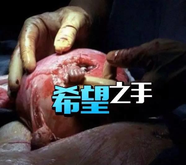 奇迹!胎儿从子宫内伸出小手紧紧握住医生的手指~
