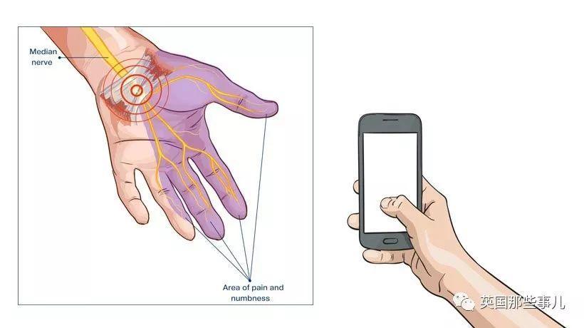 自拍过多手腕也会生病?!英国最近自拍腕越来越多了…