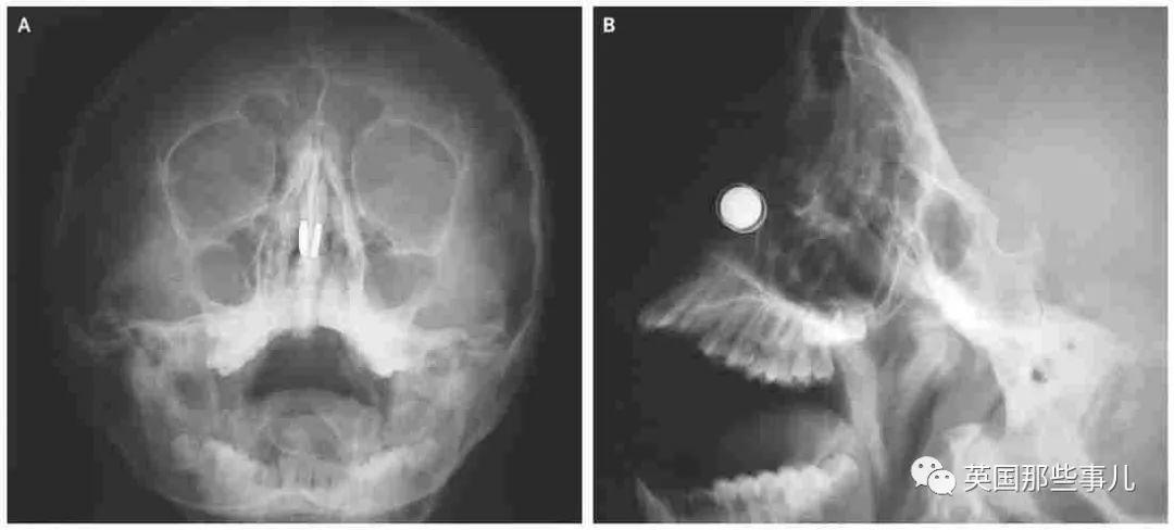 物理博士抗疫憋家无聊搞发明翻车,把四块磁铁卡鼻孔里出不来了??
